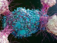 Cercetatorii britanici au descoperit tratamentul universal impotriva cancerului: Terapia cu un nou tip de celula T